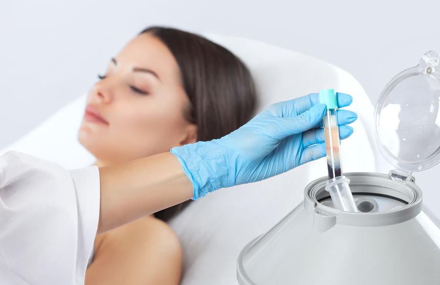 PRP Treatment