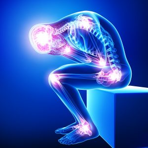 Arthritis and Joint Pain Points