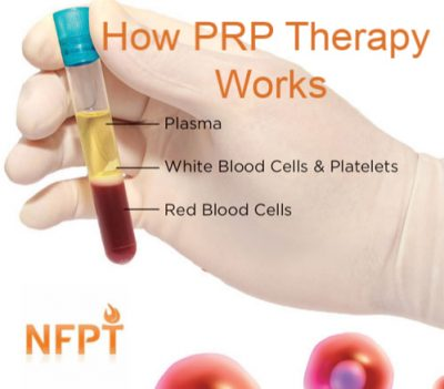 How Prp Works