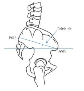 Pelvic Tilt