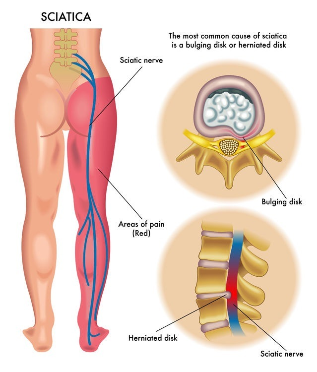 Dealing with Piriformis Syndrome